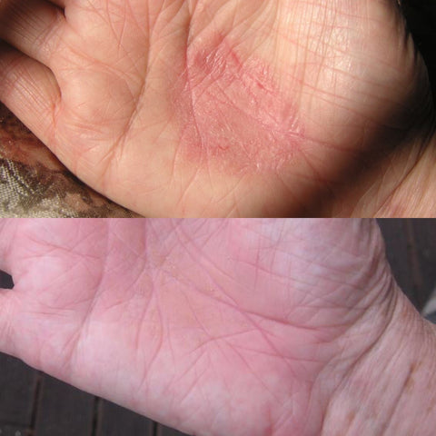 Hand Rash before and after