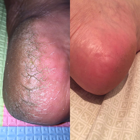 Cracked heels before and after