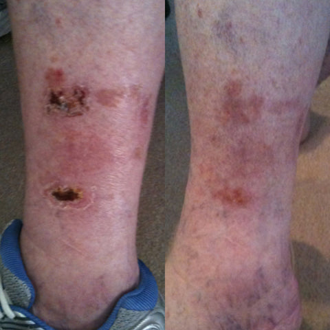 Leg Ulcers before and after