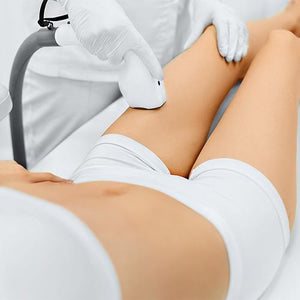 SHR - Full Arm or Thigh & Leg Super Hair Removal (1st Trial) at MEROSKIN