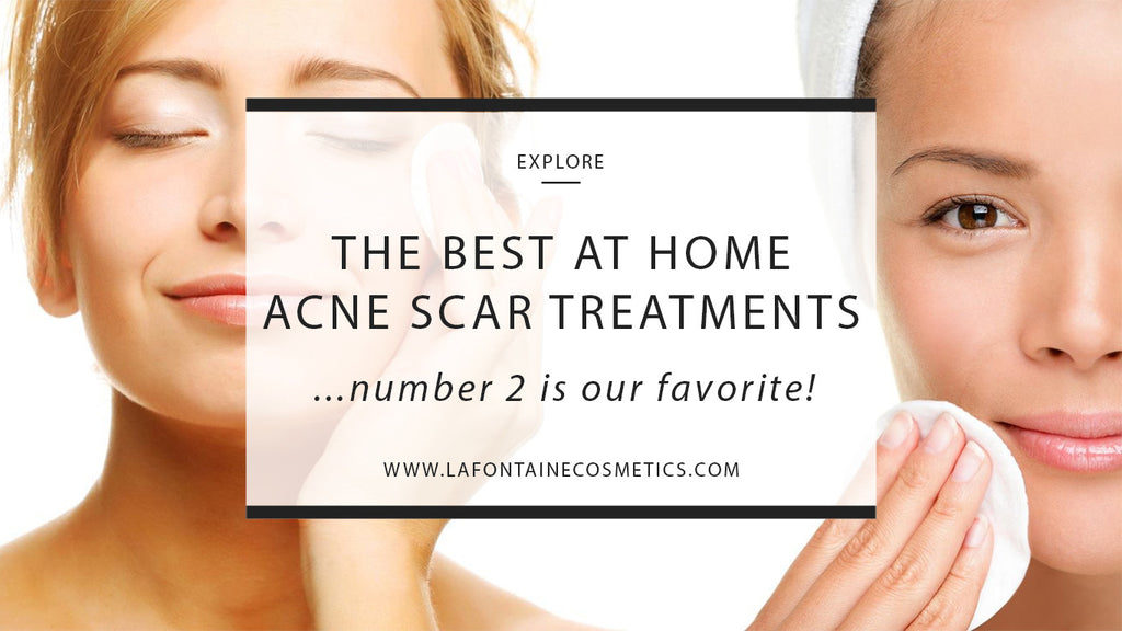 The Best At Home Acne Scar Treatments… Number 2 is My Favorite