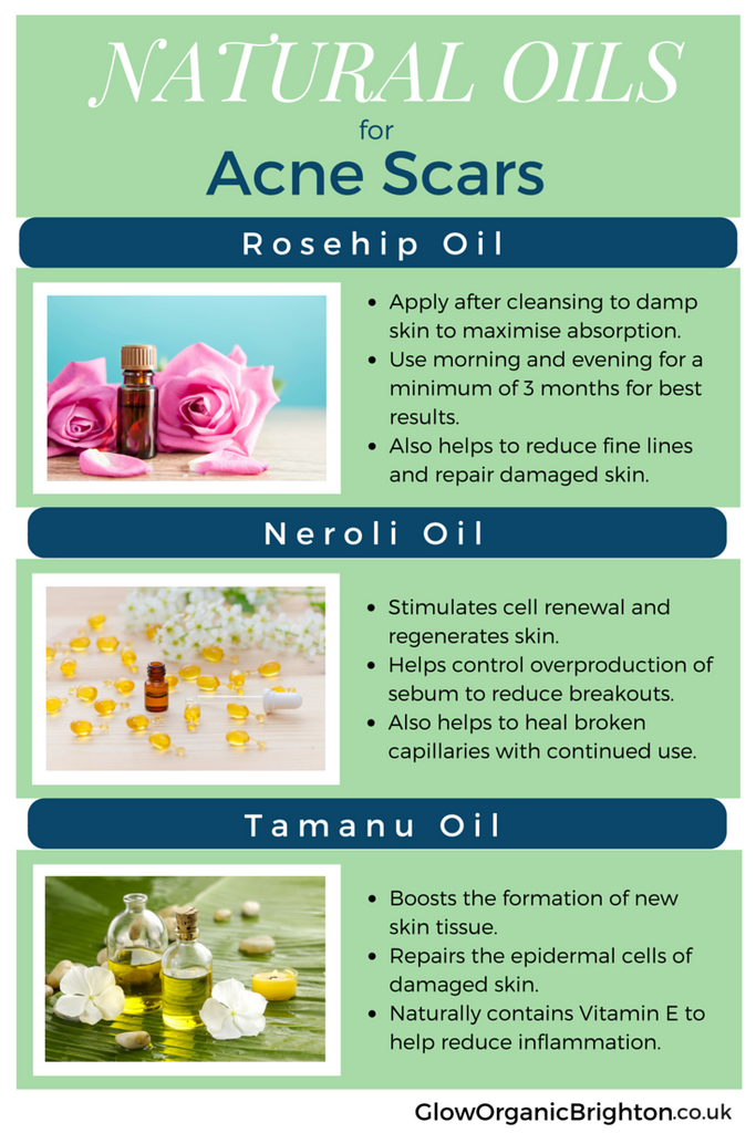 natural-oils-for-acne-scars