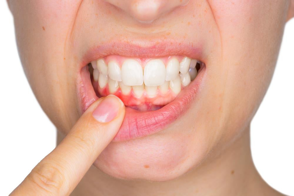 The Hidden Agenda Behind Healing Crystals For Tooth Problems