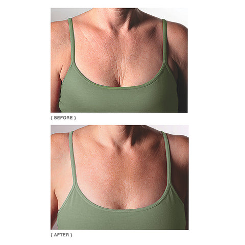 Decollette Pad for Chest Wrinkles - Isabella Catalog