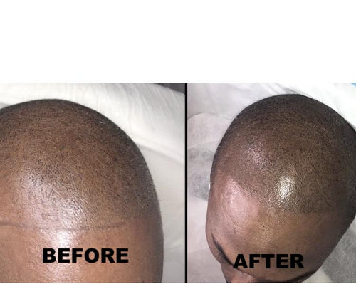 SCALP MICROPIGMENTATION TRAINING ($3000) DEPOSIT $200