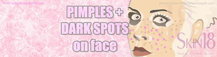 Solution for those with pimples and dark spots on face