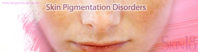 Skin Infection can lead to Skin Pigmentation Disorders