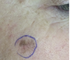 Cosmetic laser treatment can delay melanoma diagnosis and have devastating outcomes