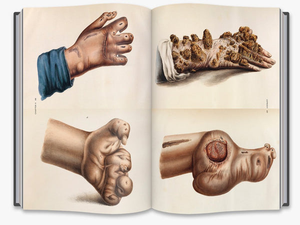 The Sick Rose: Disease and the Art of Medical Illustration - the exhibition catalogue from Wellcome Collection available to buy at Museum Bookstore