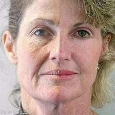 L-Ascorbic Acid 15 gm Vitamin C Powder 100% Pure C Skin Lightener Lightening - ModelSupplies