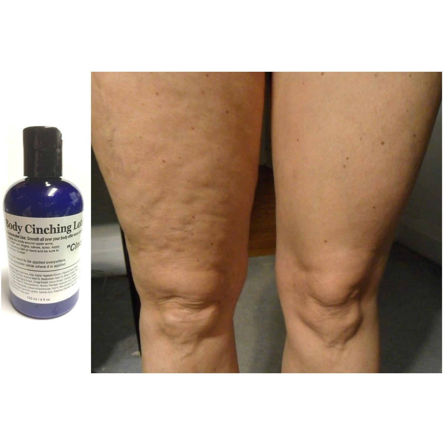 ModelSupplies Body Cinching Lotion DMAE ALA Ester-C HA Cinch Skin Tightening Stretchmarks Conceal Cellulite 4oz - ModelSupplies