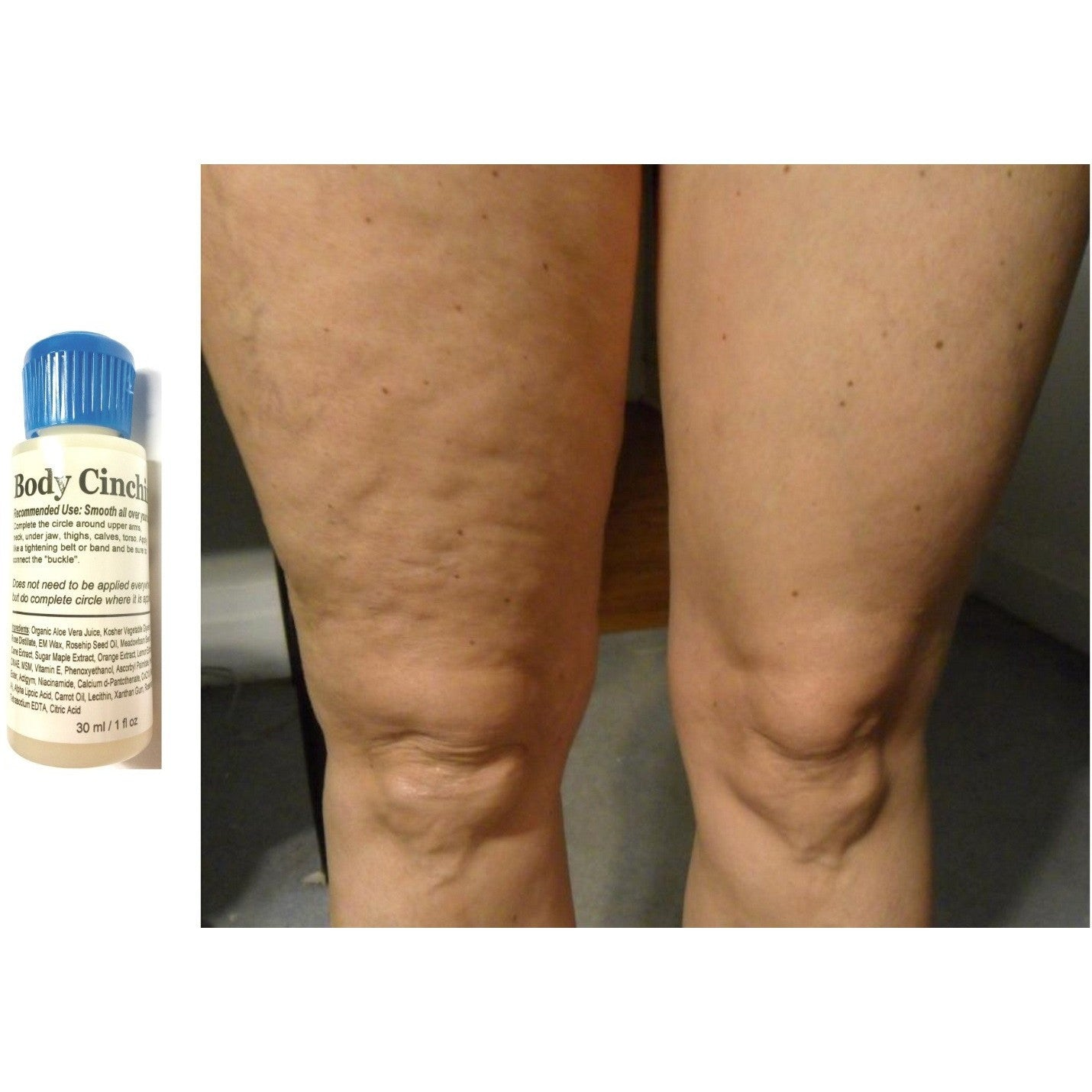 SAMPLE ModelSupplies Body Cinching Lotion DMAE ALA Ester-C HA Cinch Skin Tightening Stretchmarks Conceal Cellulite 1oz - ModelSupplies