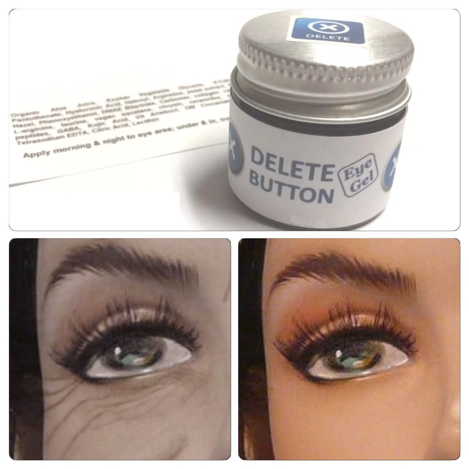 Delete Button Eye Gel DMAE Haloxyl Caffeine Puffy Under Eyes Dark Circles 1 oz/30 ml