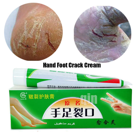 Hand Foot Crack Cream Heel Chapped Peeling Foot and hand Repair Anti Dry Crack Skin Chinese Medicinal Ointment Cream skin care - ModelSupplies