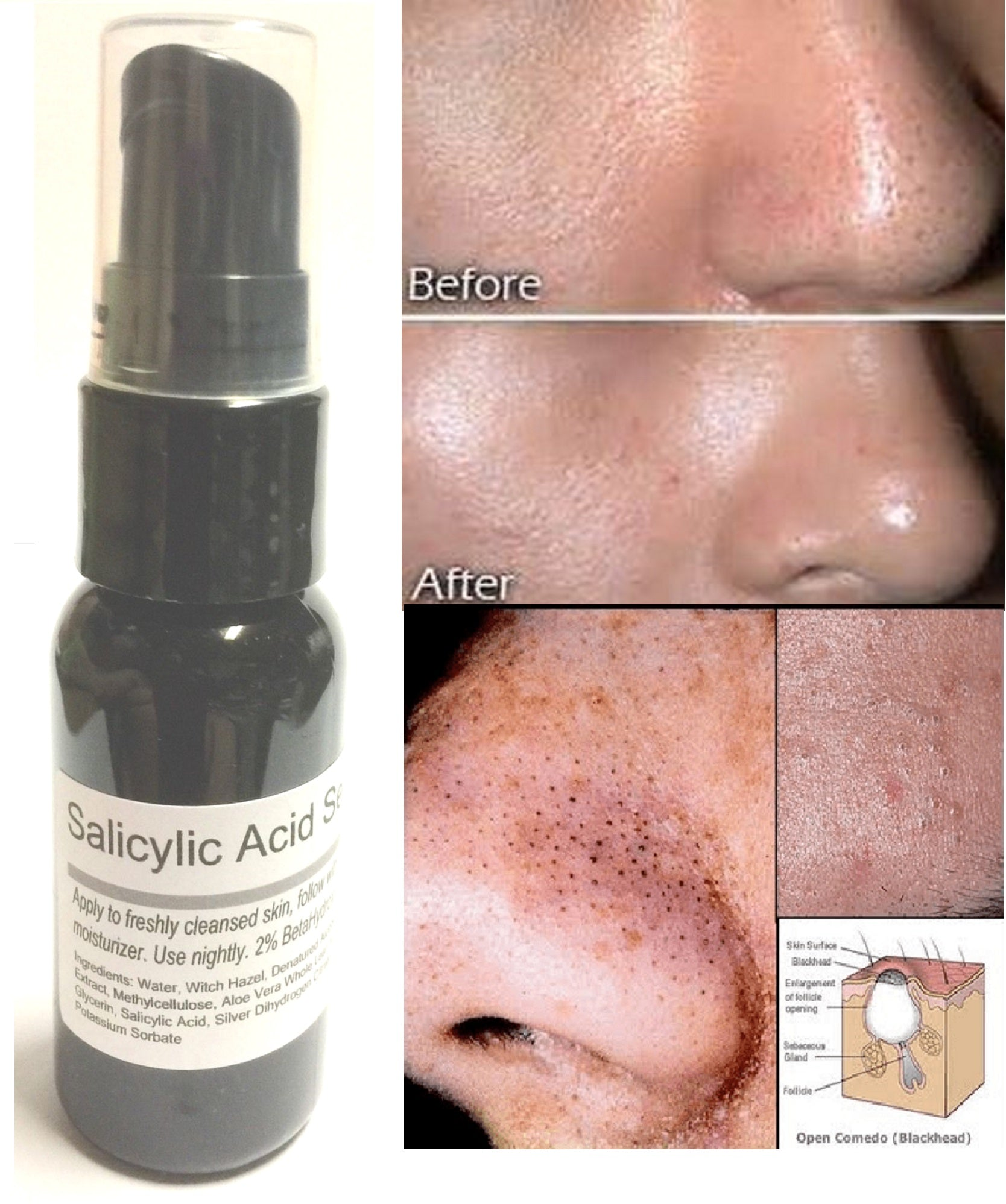 Salicylic Acid Serum 2% By ModelSupplies Eradicate Blackheads Clogged Pores Acne