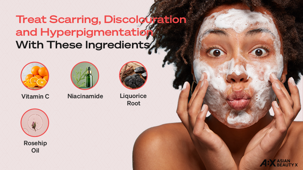 Skincare Ingredients for treating scars discolouration and hyperpigmentation