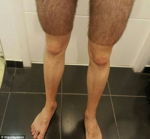 Why do cyclists shave their legs