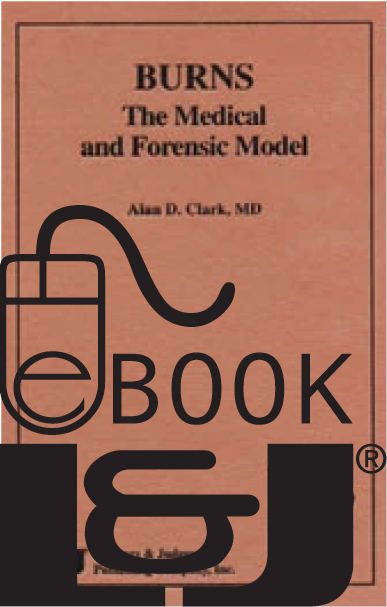 Burns: The Medical and Forensic Model PDF eBook - Lawyers & Judges Publishing Company, Inc.