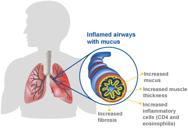 mucus in the lungs