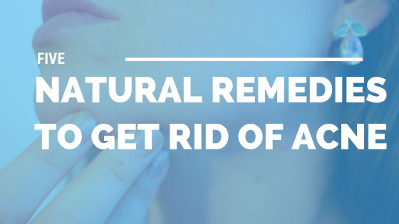 5 Natural Remedies to Get Rid of Acne [522 Words] - article > 500 - Article Blizzard