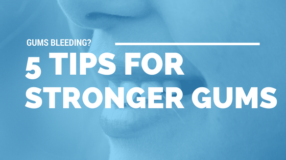 Gums Bleeding? 5 Tips for Stronger Gums [543 Words] - article > 500 - Article Blizzard