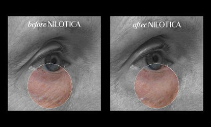 Nilotica Deep Hydration Sheet Mask