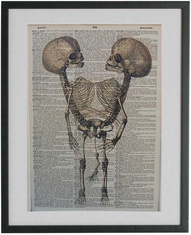 Siamese Twins Skeleton Wall Art No.480, gothic