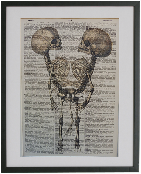 Skeleton Siamese Twins Print No.480