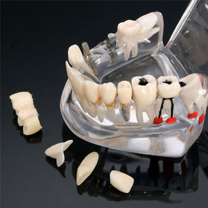 Removable Dental Repair Model Restoration Bridge Caries Tooth Education Hot