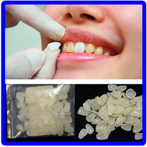 Dental Ultra-Thin Whitening Veneers Resin Teeth Upper Anterior Shade 60Ppcs/bagE