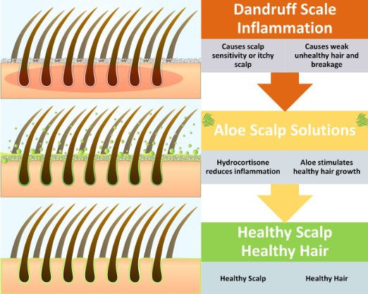 Aloe Scalp Solutions - 3 bottles