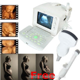 Ultrasound Scanner Ultrasonic Machine  Transvaginal + Convex 2 Probes CE Sale