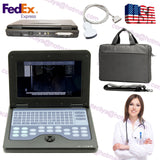 Digital Ultrasound scanner Portable laptop machine 3.5 Convex probe USA FedEx 658126921220