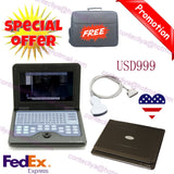USA FedEx,CE New Portable laptop machine Digital Ultrasound scanner,Convex probe 658126935654