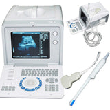 CE Portable Ultrasound Scanner Machine Convex +Transvaginal 2 Probe 3D Pregnancy 190891422446