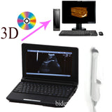 Full Digital Laptop 3D Ultrasound Scanner 6.5 MHZ transvaginal Probe Pregnancy