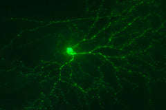 intrinsically photosensitive retinal ganglion cell