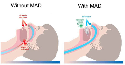 mandibular advancement device treating obstructive sleep apnea
