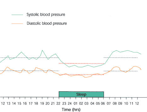 how to graph blood pressure over time
