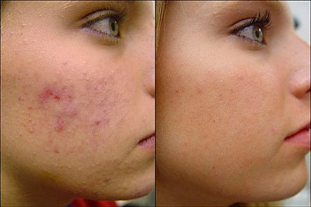 Acne Facial Package Share with Family and Friends