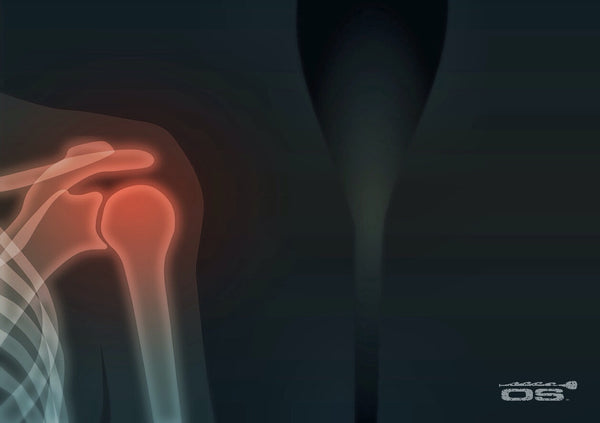 Paddle x ray
