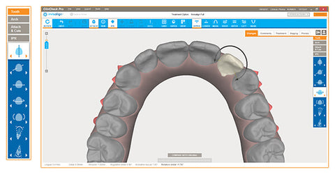 Check your Invisalign doctor site to see if they use ClinCheck technology to create a plan for straightening your teeth