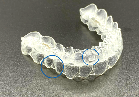 Invisalign trays with blue circles denoting the presence of buttons affixed to the clear aligners