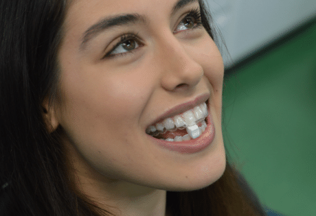 Female patient placing Movemints between her invisible braces