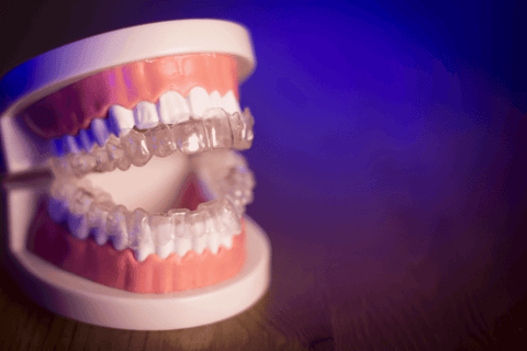 model of teeth with clear aligners dentist orthodontist office example