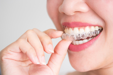 woman placing invisalign tray in mouth