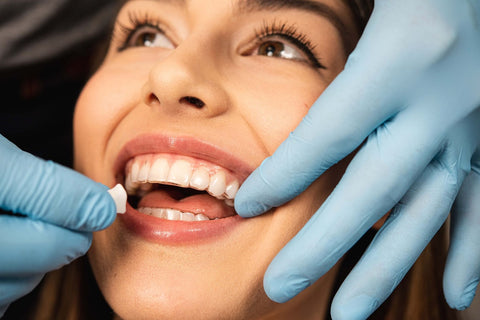 woman with clear aligners in movemints blue glove orthodontist