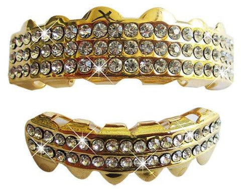 Hip Hop 14K Gold Plated Removeable Mouth Grillz Set (Top & Bottom)