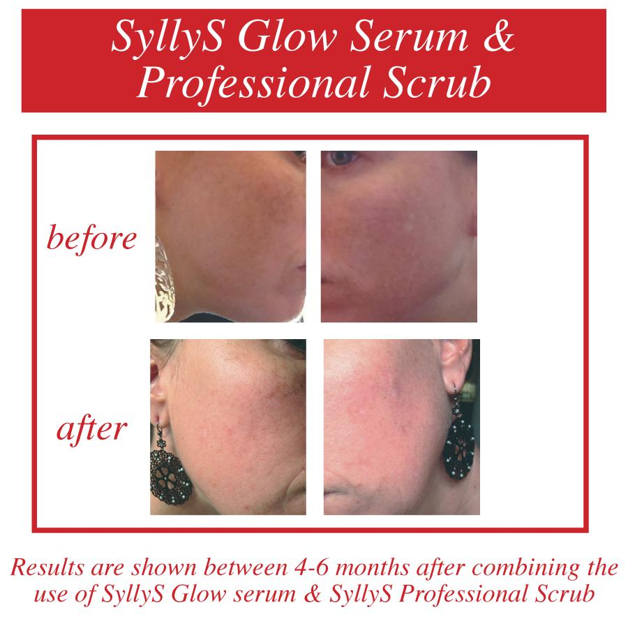 A before and after image of the invisibility of pigmentation on the woman's cheeks after using SyllyS Glow Serum a Concentrated Stable Vitamin C with SyllyS Professional Scrub  for 4-6 months.