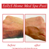 Home Med Spa Peel